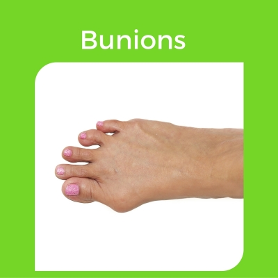 Bunions are a joint problem which is made worse by shoes and activity