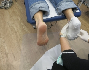 Podiatrist applying a plaster cast