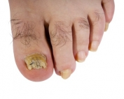 Fungal Infection of the toenail