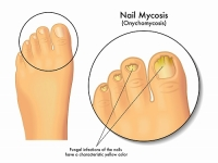 Also know as toe rot, this is a nail fungal infection