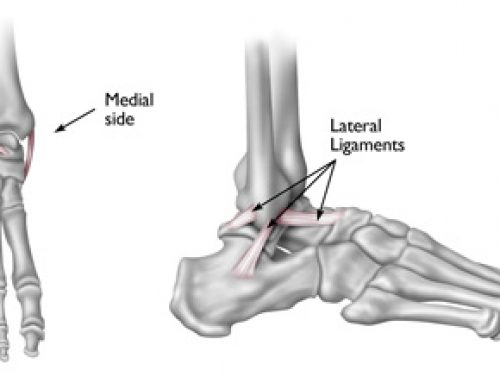 Understanding Ankle Sprains – The how, what and where