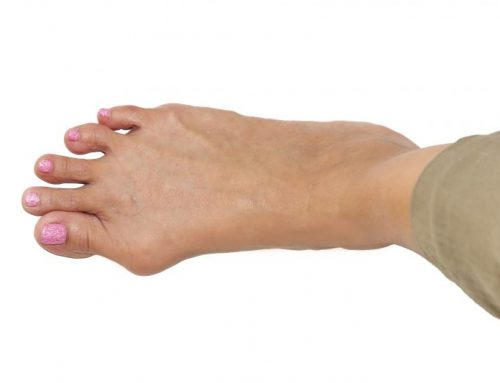 Successfully treating Bunions with custom splints